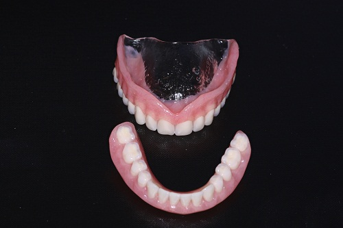 High impact acrylic dentures