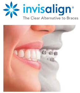 Invisalign Braces Telford and Wolverhampton