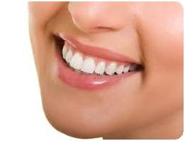 Tooth Whitening Newport