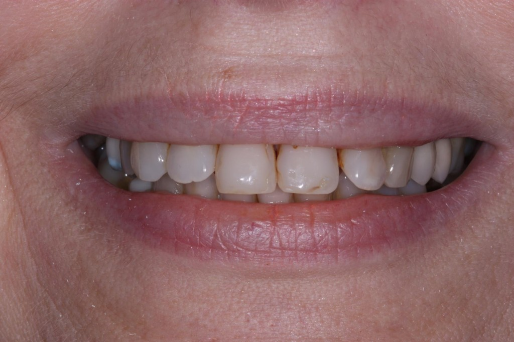1aCombination-of-Crowns-Veneers-and-Bridge-work