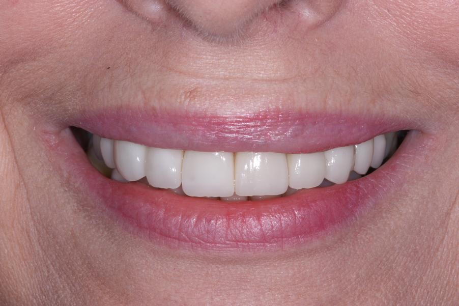 1b.Combination-of-Crowns-Veneers-and-Bridge-work-2
