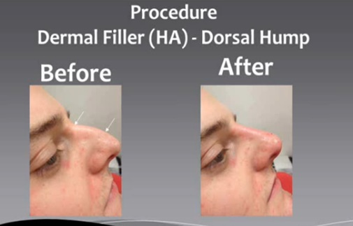 Non Surgical Rhinoplasty - Wycherleys dental practice