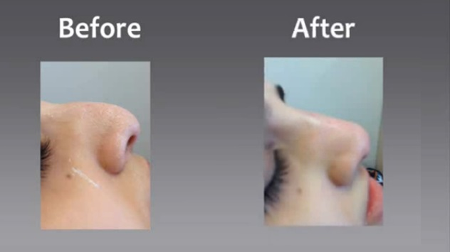 Non Surgical Rhinoplasty - Wycherleys dental practice